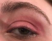 1960 Eye