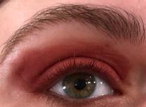 Bloodmilk Eye