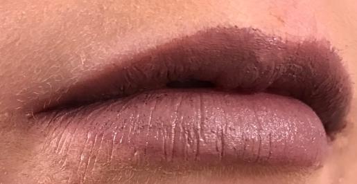 Thistle Lips