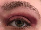 Fire 10 Eye